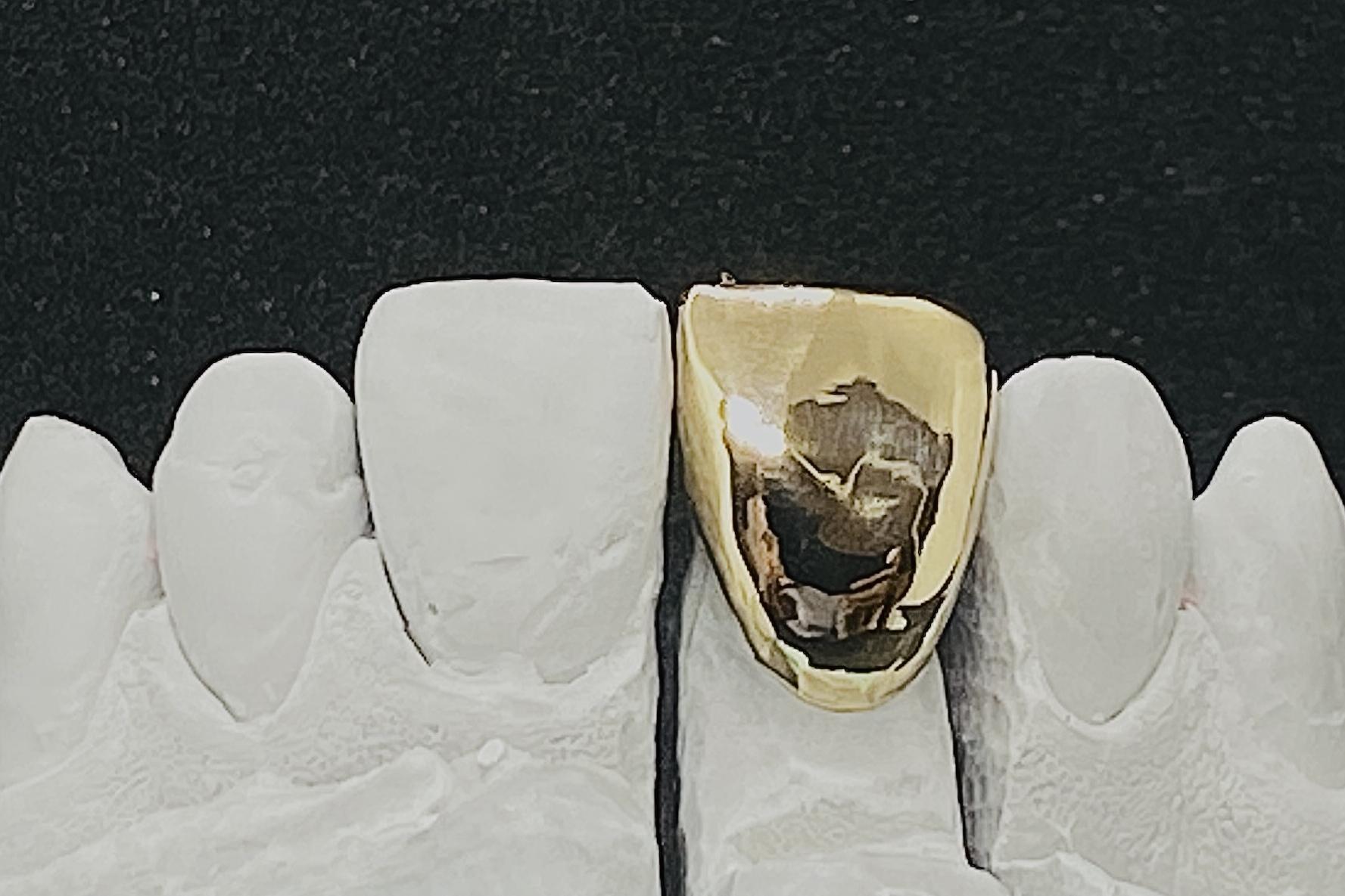 Gold Vollgußkrone