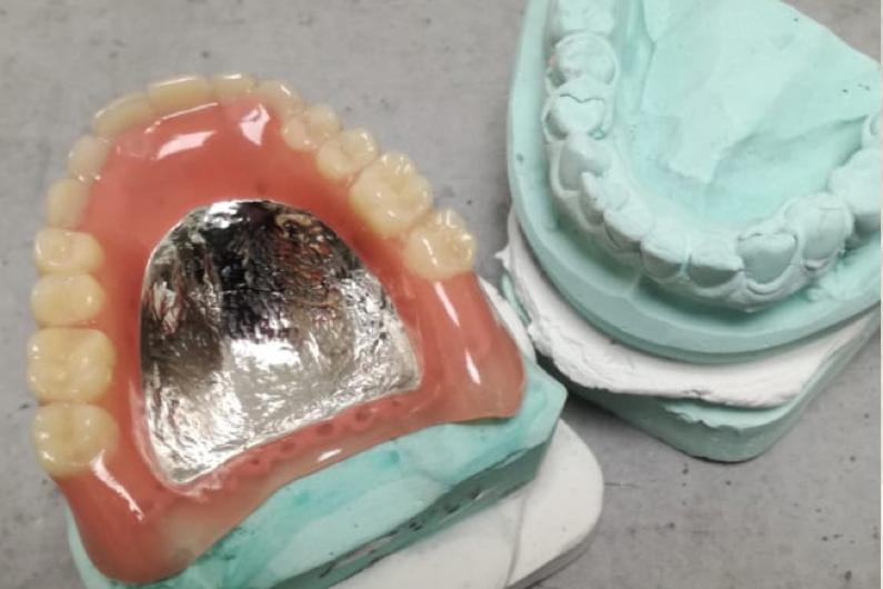 Oberkiefer Totale Prothese mit Metallbasis